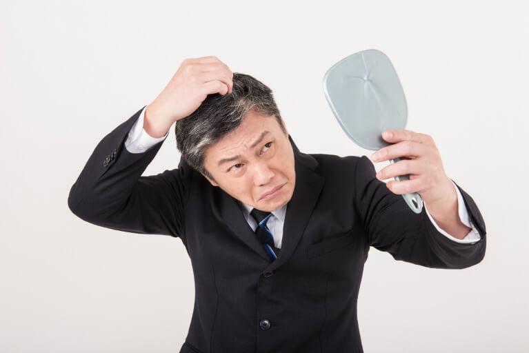 男性型脱毛症(AGA)とは