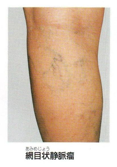 下肢静脈瘤の種類について